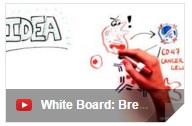 whiteboard.breast.cancer